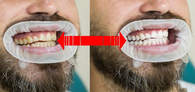 Advanced_Family-Dentistry_Dr-Sonny-Kim_Reston-Virgina_6-Myths-About-Tooth-Whitening-You-Need-to-Know