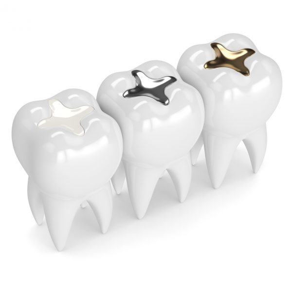 Advanced_Family-Dentistry_Dr-Sonny-Kim_Reston-Virgina_Amalgam vs. Composite Fillings