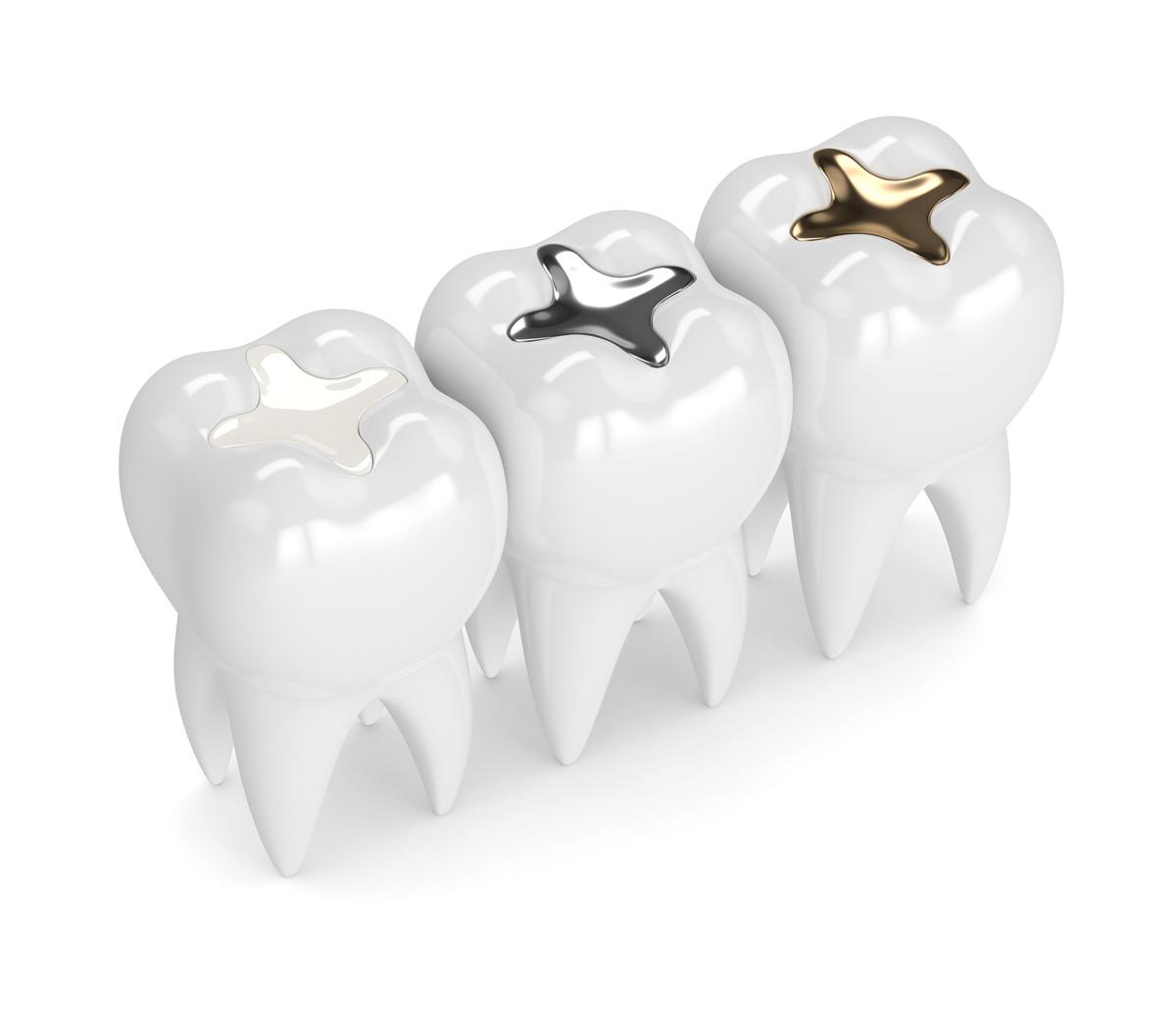 Advanced_Family-Dentistry_Dr-Sonny-Kim_Reston-Virgina_Amalgam vs. Composite Fillings