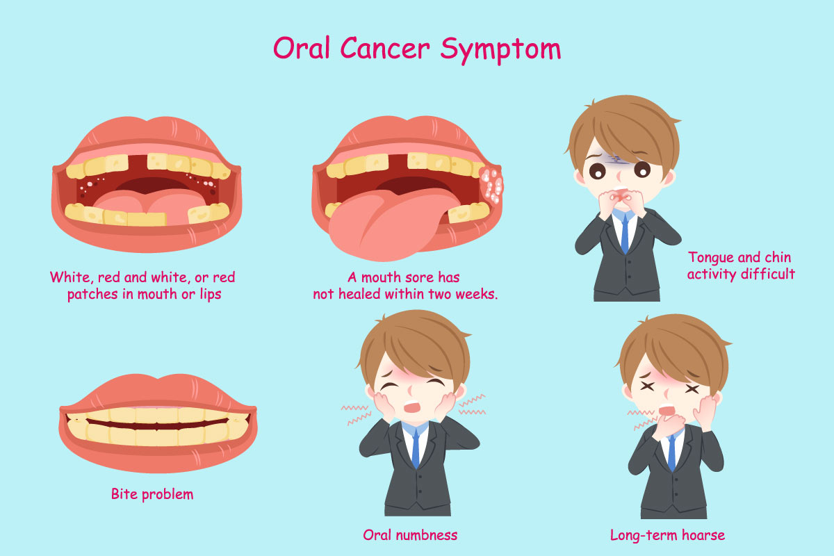 Advanced_Family-Dentistry_Dr-Sonny-Kim_Reston-Virgina_April is Oral Cancer Awareness Month