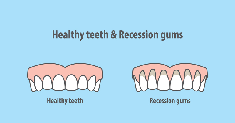 How to Prevent Gum Recession