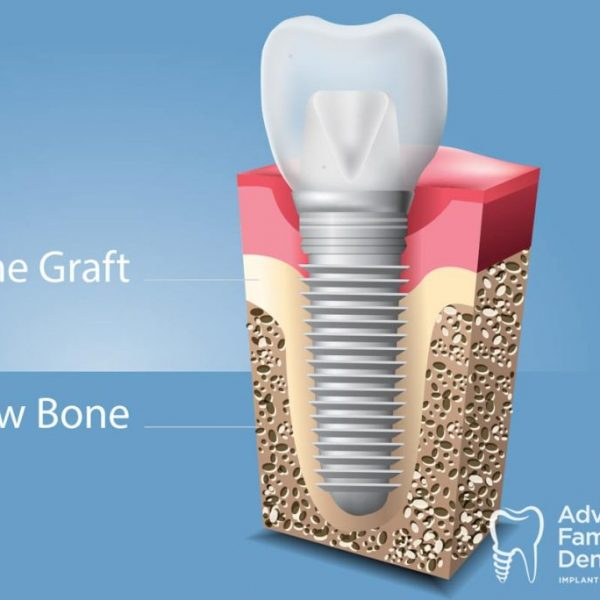 Advanced_Family-Dentistry_Dr-Sonny-Kim_Reston-Virgina_Oral Bone Grafts