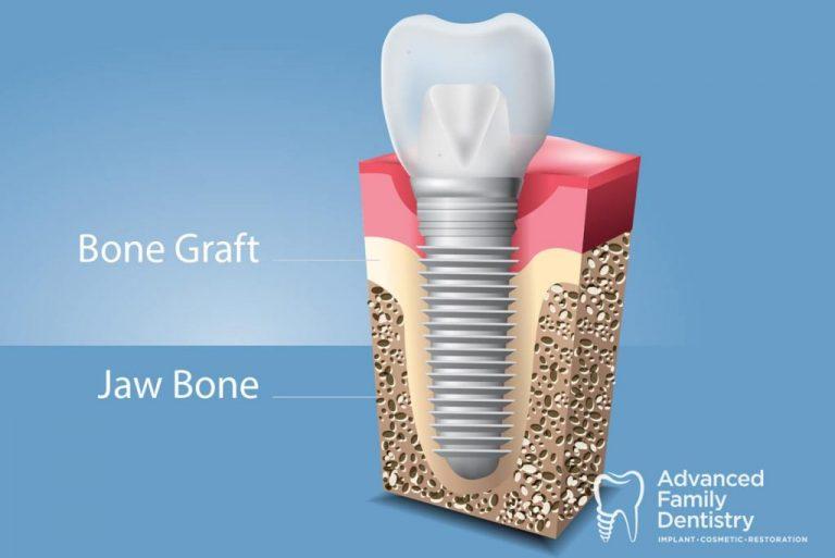 Advanced_Family-Dentistry_Dr-Sonny-Kim_Reston-Virgina_Oral Bone Grafts