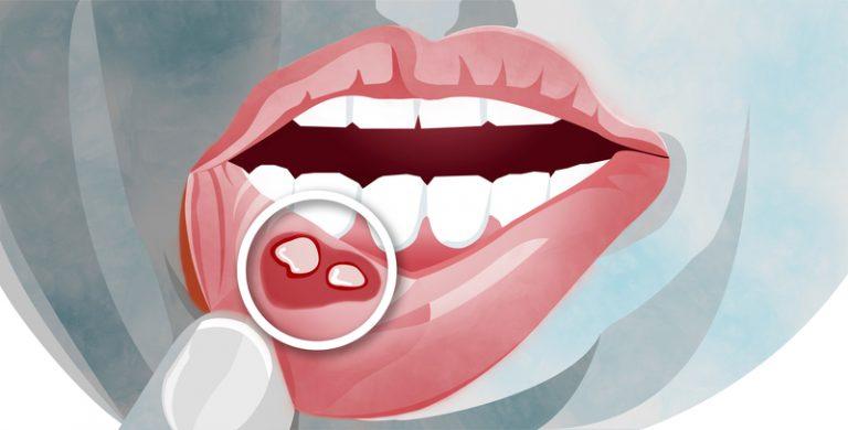 Advanced_Family-Dentistry_Dr-Sonny-Kim_Reston-Virgina_Types-of-Mouth-Sores