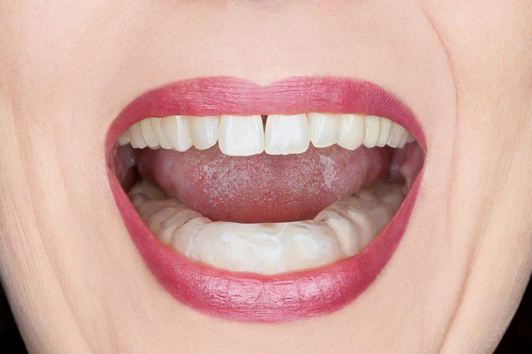Advanced_Family-Dentistry_Dr-Sonny-Kim_Reston-Virgina_What-is-TMJ