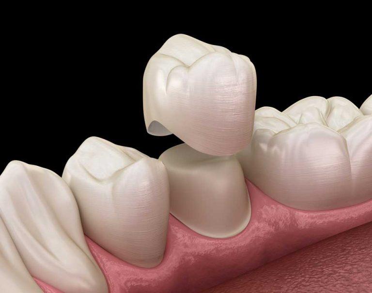 Advanced_Family-Dentistry_Dr-Sonny-Kim_Reston-Virgina_Why-Do-I-Need-a-Crown