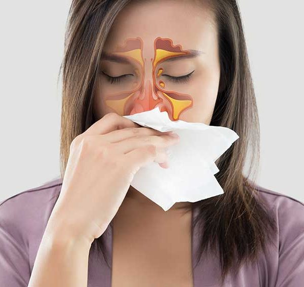 Why-You-May-Need-a-Sinus-Lift-or-Sinus-Augmentation