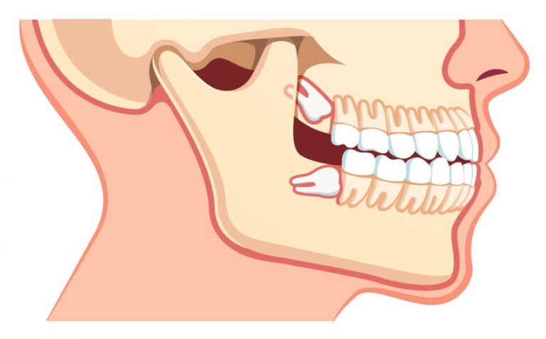 Advanced_Family-Dentistry_Dr-Sonny-Kim_Reston-Virgina_Wisdom-Teeth